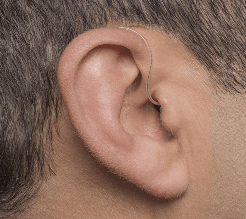 hearing-aid--RITE