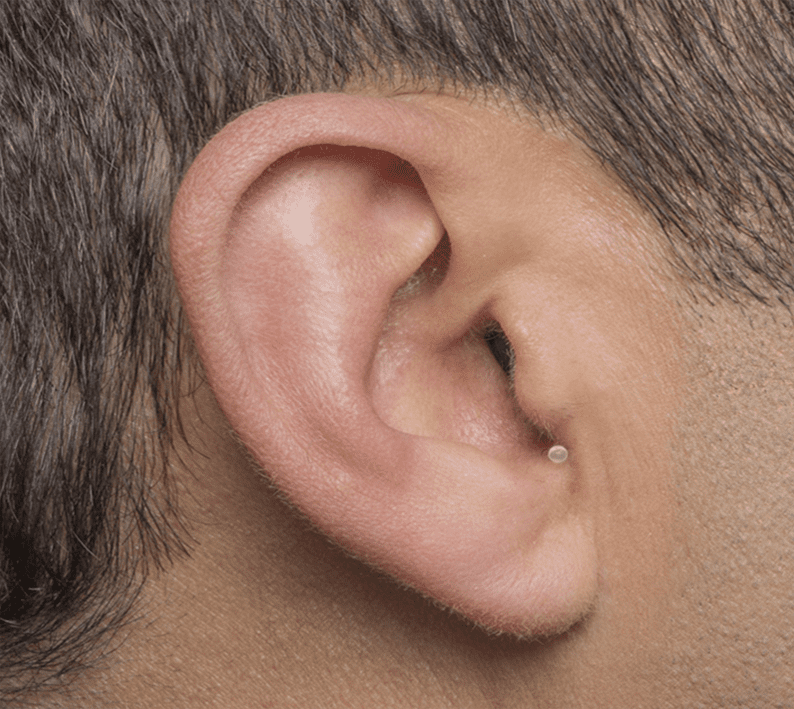 Invisible-In-the-Ear (IIC)